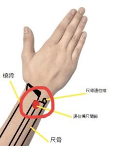 遠位橈尺関節捻挫