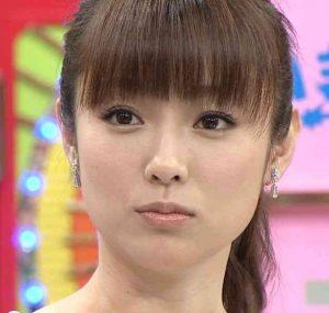 深田恭子 整顔