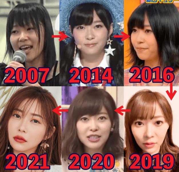 指原莉乃の顔変化がデビュー時から激変?違いを比較して画像一覧にまとめた
