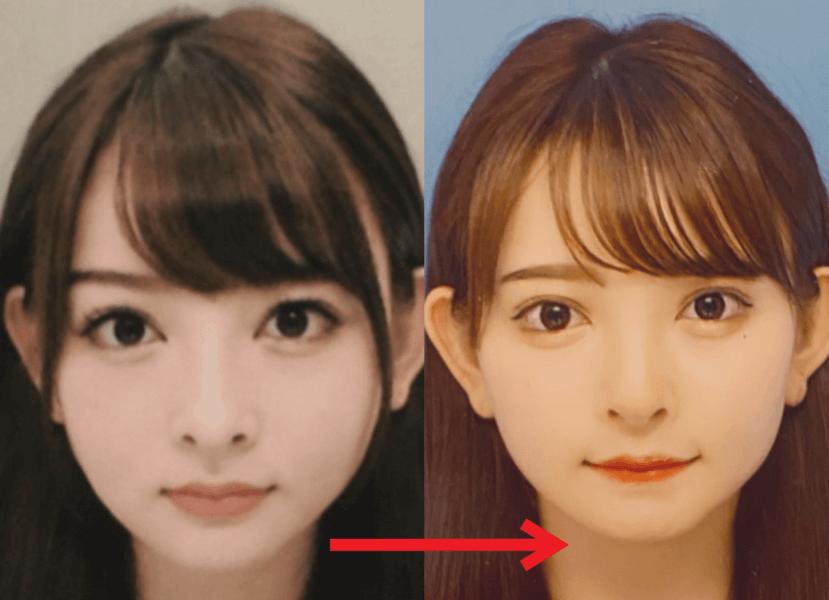 元の顔と整形後の顔の比較画像