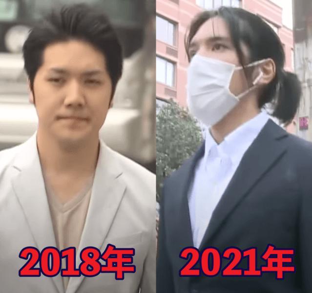 小室圭さんの渡米前と現在の顔の比較画像
